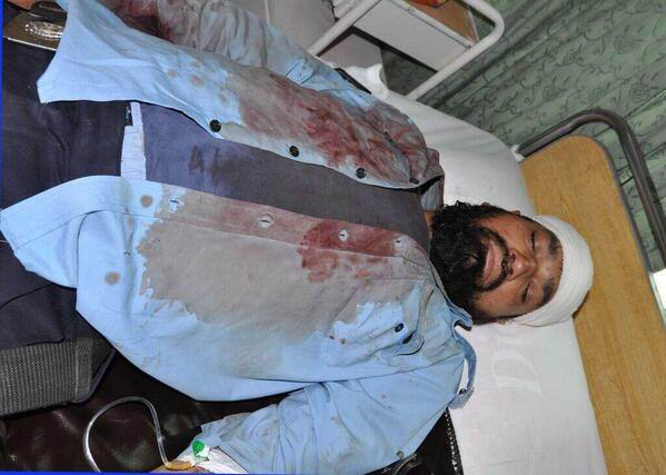 A cop is being admitted in hospital after PAT workers attack in Islamabad.jpg